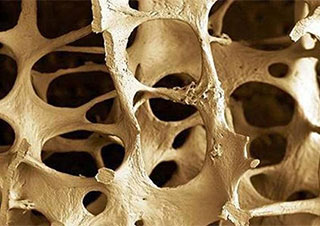 Relieving the Pain of Osteoporosis Naturally