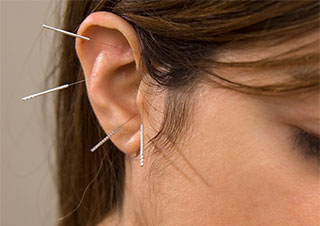 Ear Acupuncture – The Fast Track to Stress & Anxiety Relief